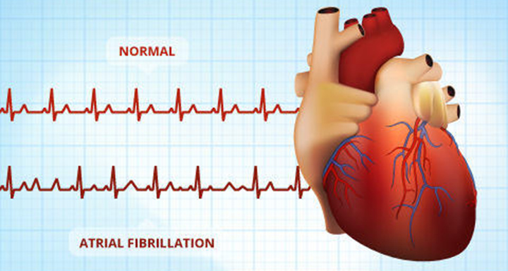 a-fib, blood thinners, stroke, afib
