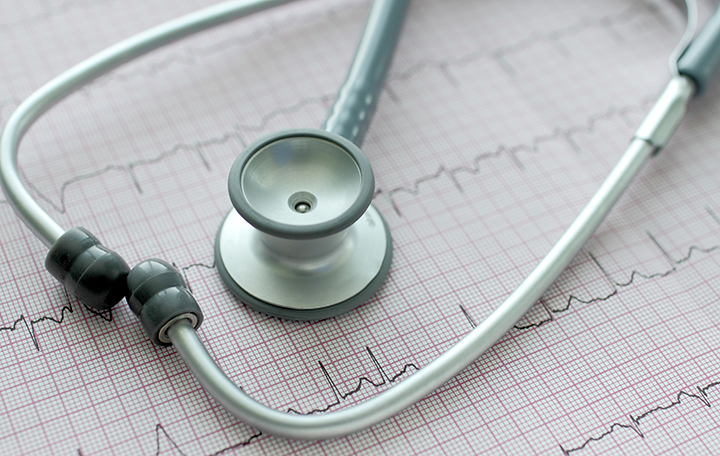 afib, atrial fibrillation, afib treatment