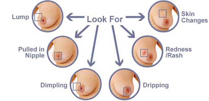 triple negative breast cancer, breast cancer, breast cancer symptoms, breast cancer treatment