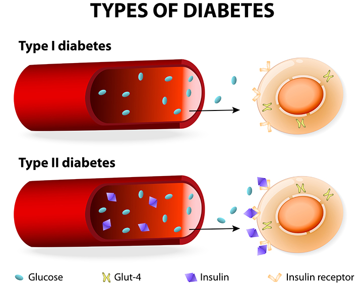 type 2 diabetes, type 2 diabetes symptoms, type 1 diabetes, difference between type 1 and type 2 diabetes