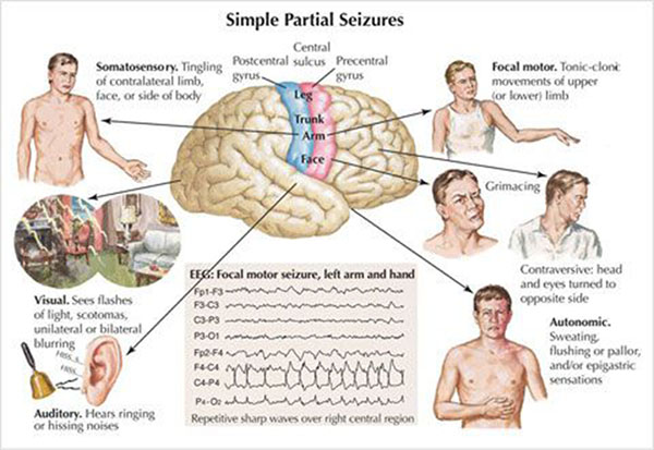 simple partial seizures, epileptic seizures