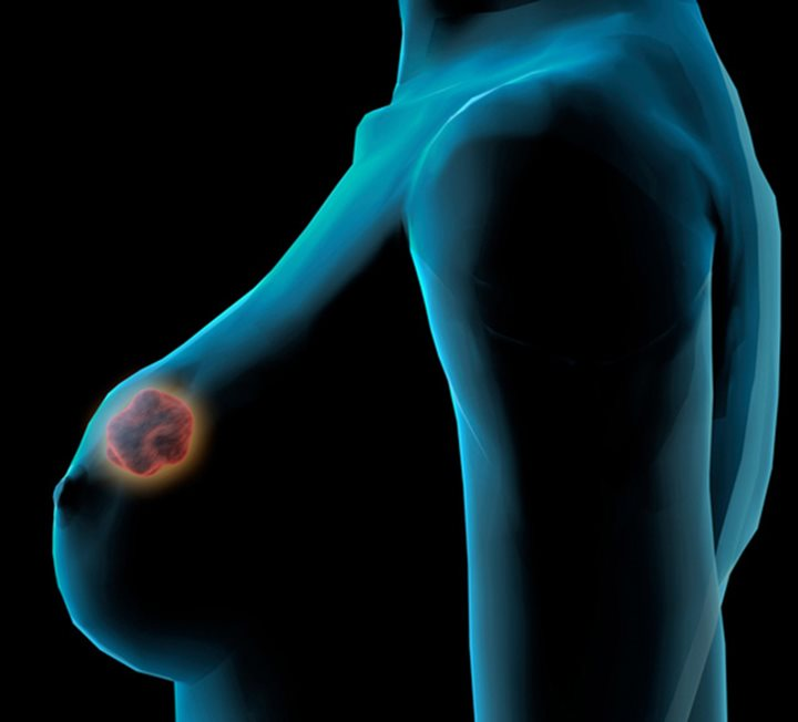 the types of breast cancer