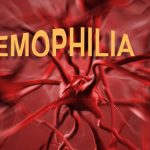 Facts About Hemophilia