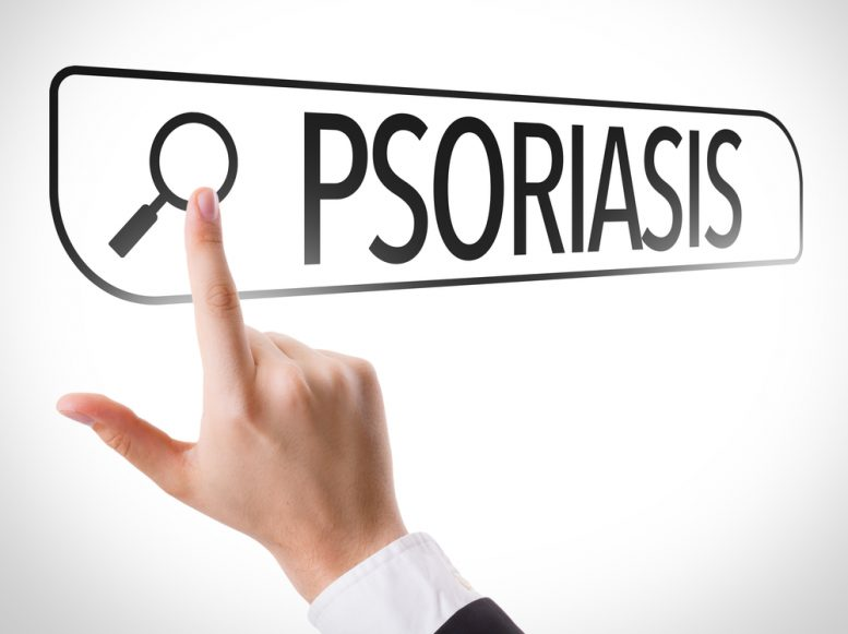 medication for plaque psoriasis