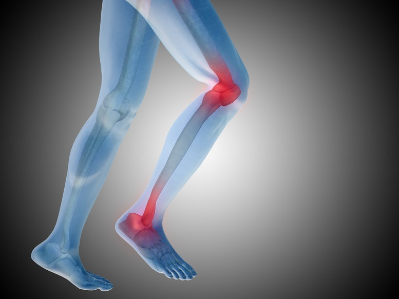 Rheumatoid Arthritis Leg Pain Treatments