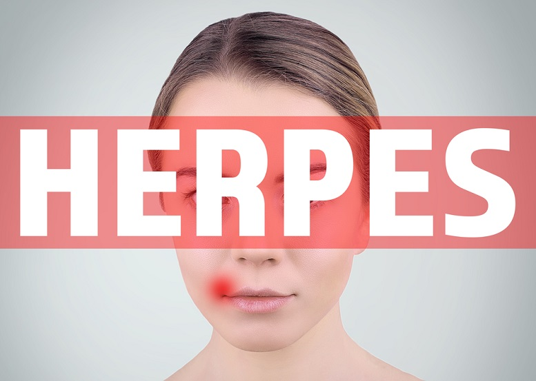 valtrex herpes medication