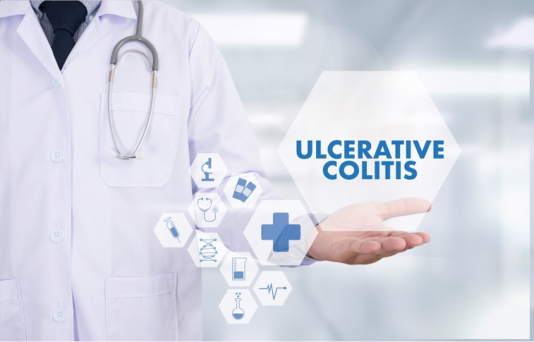 mesalamine ulcerative colitis treatment