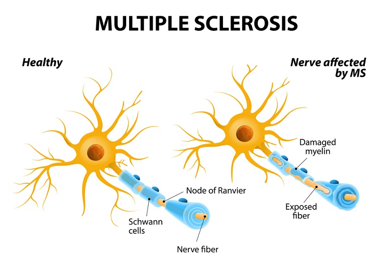 ampyra multiple sclerosis treatment