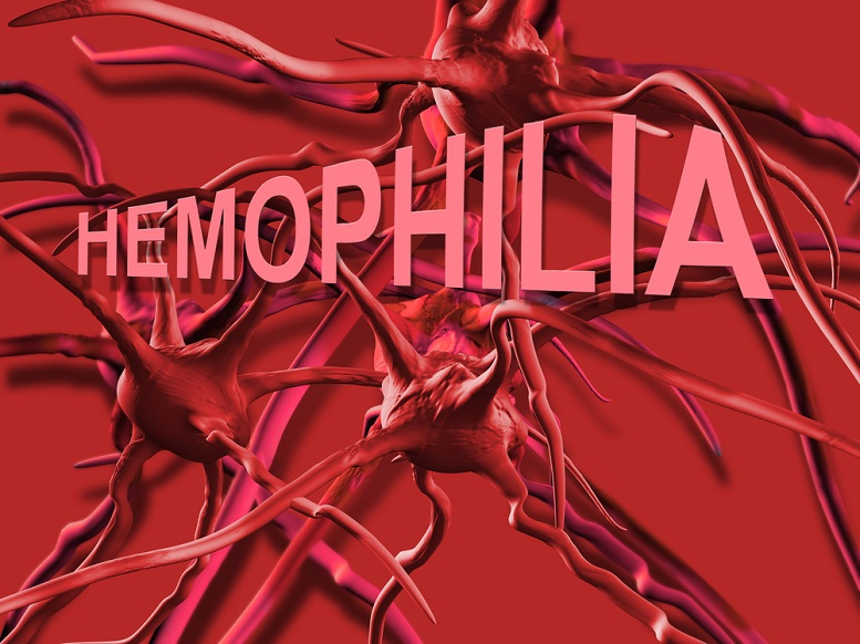 Hemophilia B Treatments