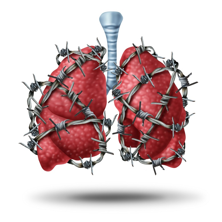 medications idiopathic pulmonary fibrosis